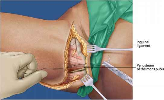 Fixation Suture on the Pubic Bone with 20 Monocryl - Aesthetic Surgery