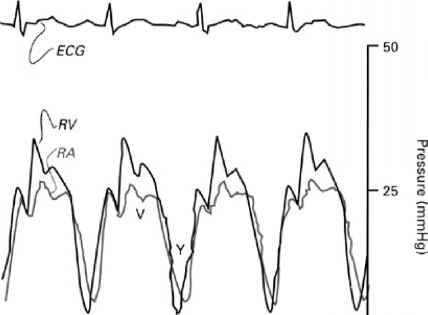 Ecg Waveform For Tricuspid Atresia