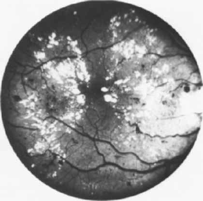 Diabetic Macular Oedema Exudative