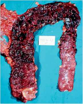Ulcerative Colitis With Necrotic