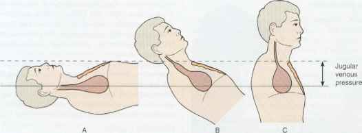 What causes distended neck veins?