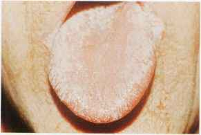 Mucous Patches Syphilis