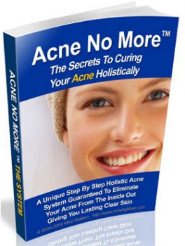 Acne Cure Diet
