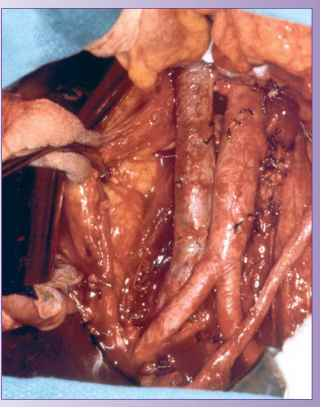 Retroperitoneal Node Dissection
