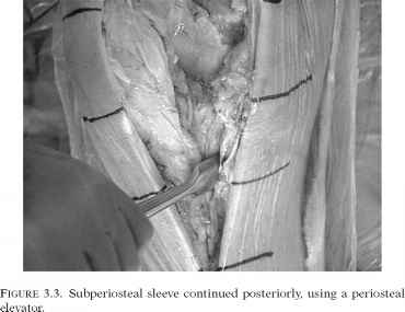Front Knee Tendon Structure Images