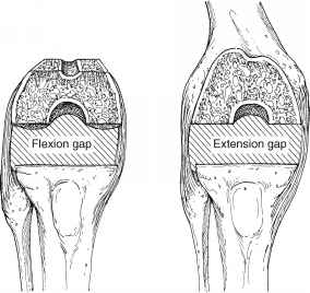 Knee Flexion And Extension Gap