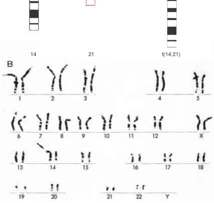Alzheimer Chromosome
