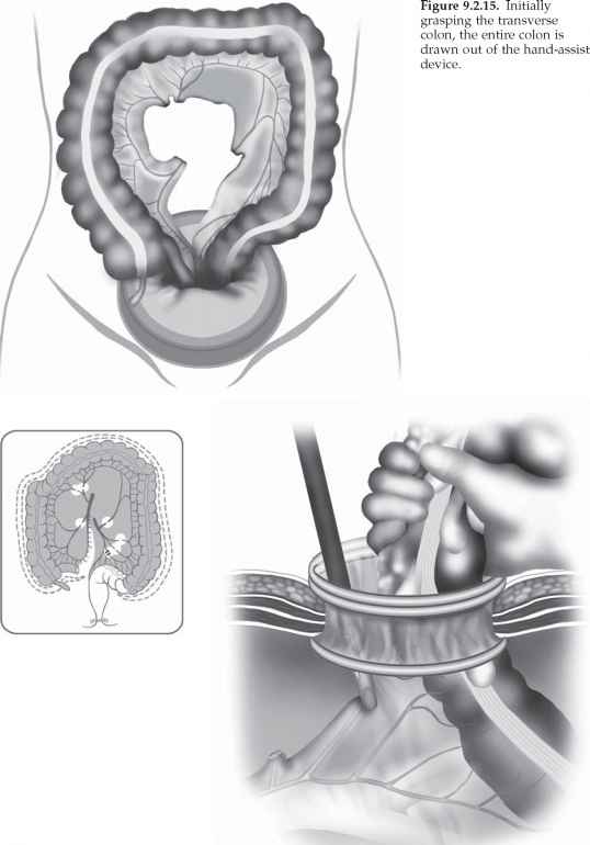 Open Sigmoid Colectomy