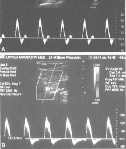 Biphasic Arterial Waveforms