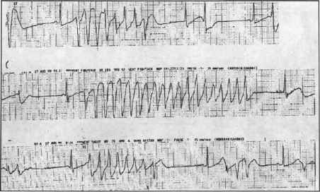 Atrial Fibrillation Intracardiac Signal