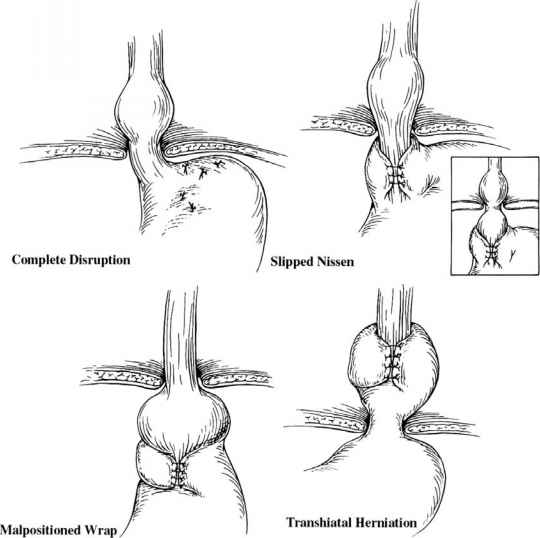 Floppy Fundoplication