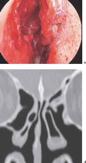 How Remove Polyp Sinus