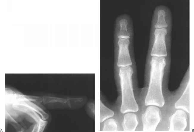 Fracture Distal Phalanx Hand
