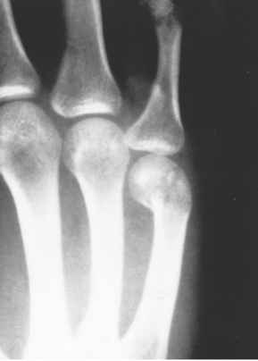 Metacarpal Neck Fractures Reduction