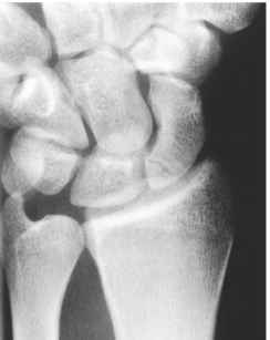 Proximal Pole Scaphoid Fracture