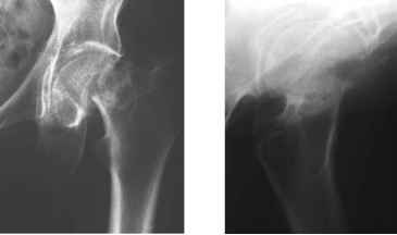Subcapital Femoral Neck Fracture