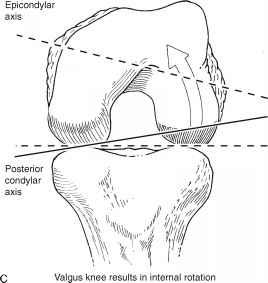 Lateral Femoral Condyle Hypoplasia Tkr