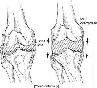 medial release for fixed varus deformity knee arthroplasty