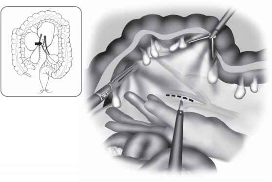 Endoscopic Scissors