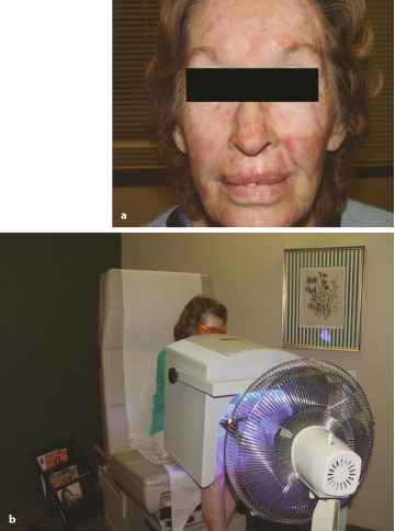 Photorejuvenation Treatment