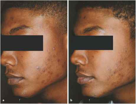 Photodynamic Therapy Other Indications Laser Treatment