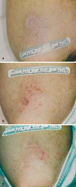 With UVB therapy, psoriasis may get worse before it gets better 1