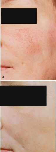 Pdl Laser Treatment