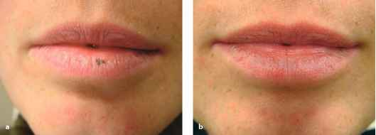 Labial Traumatic Scar Laser