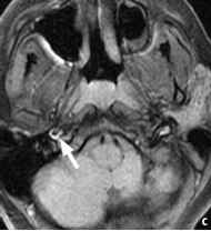 Intracranial Carotid Dissection Mri