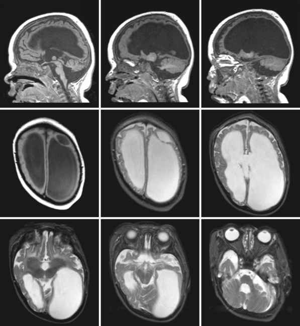 Pyruvate Dehydrogenase Deficiency Mri