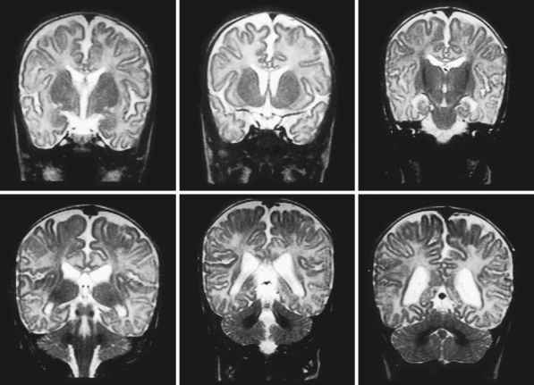 White Matter Gliosis Frontal Lobes