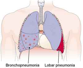 Lung Medical Terminology
