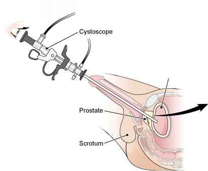 Transurethral Incision The Prostate