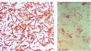 klebsiella pneumoniae gram stain