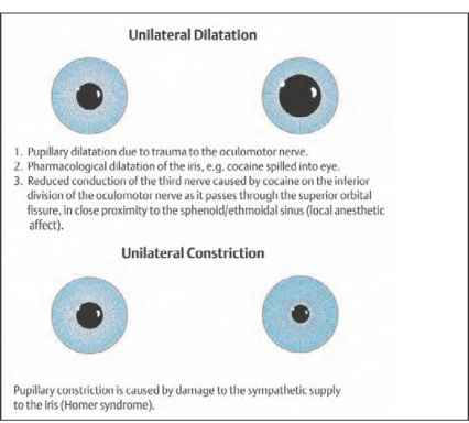 Eye Signs Legionella