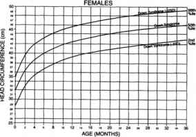 Growth Chart For Marfan Syndrome