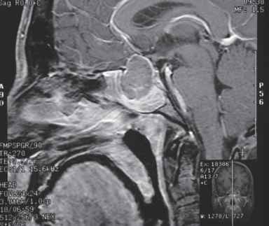 Intracranial Mucocele