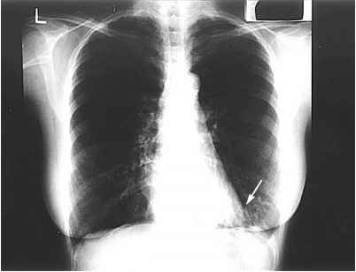 Bronchiectasis Right Lower Lobe