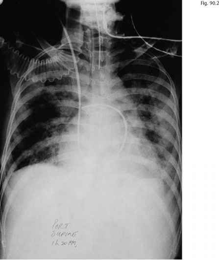 Cxr Showing Tunnelled Cuffed Catheter