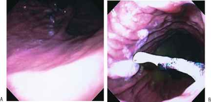 Endoscopic Antireflux Procedures