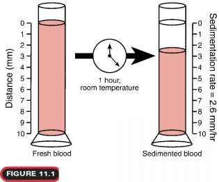 Erythrocyte Sedimentation Rate Procedure
