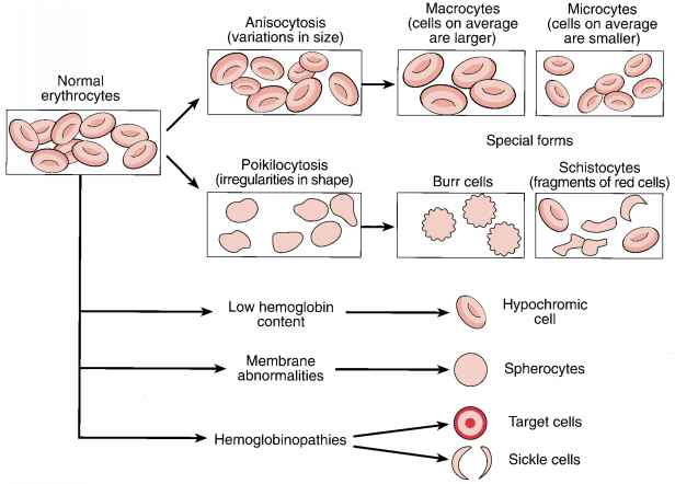 Thin Macrocytes