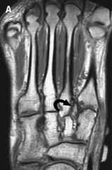 Images Leg Stress Fracture