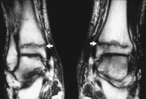 Grade 3 Tibial Stress Fracture Stress Fractures