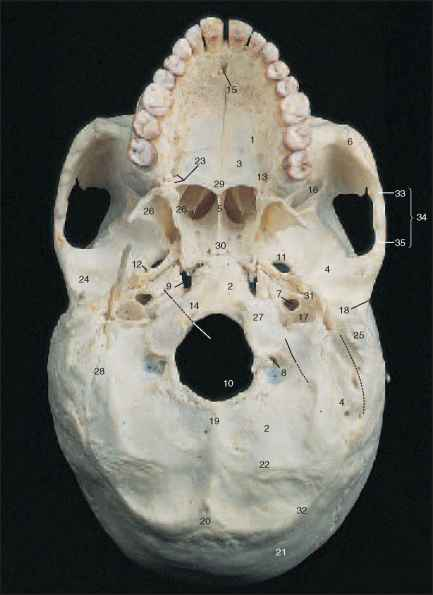 Pterygoid Process Sphenoid Bone