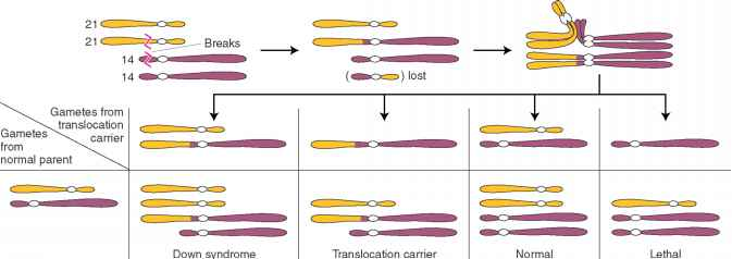 Robertsonian Translocation Chromosome