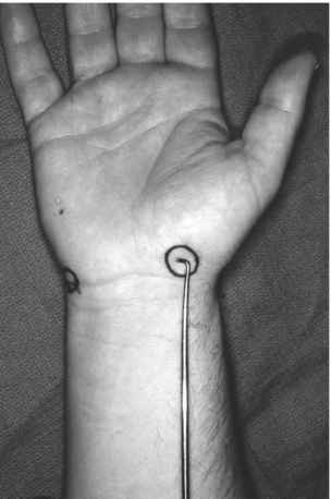 Lymph Node Hand Radial Artery