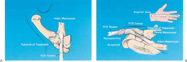 Scaphoid Tubercle Pain