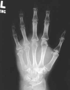 Diagnosis - Carpal Tunnel Syndrome - 78 Steps Health Journal
