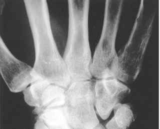 Scaphoid Non Union Advanced Collapse